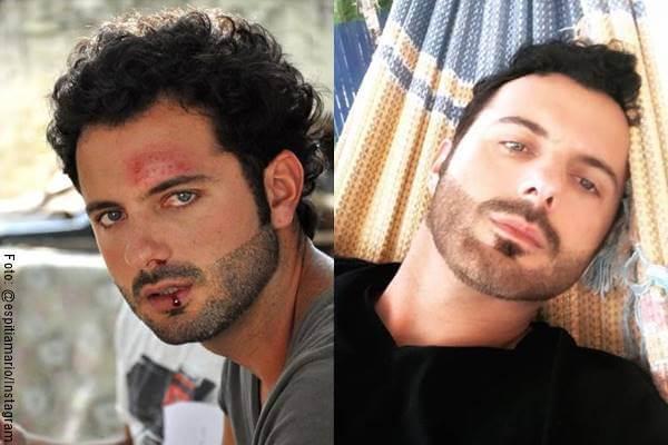 Foto antes y después de Mario Espitia