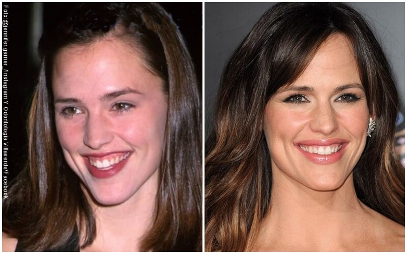 Fotos de Jennifer Garner, antes y después del diseño de sonrisa