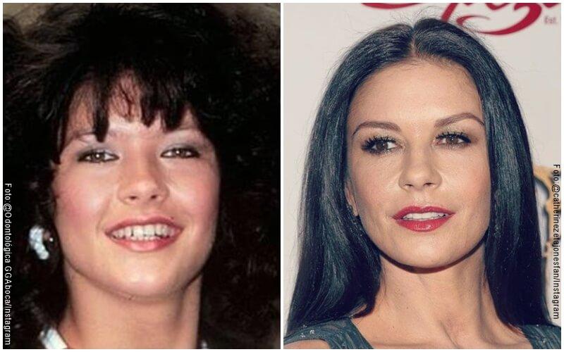 Antes y después del diseño de sonrisa de Katherine z Jones