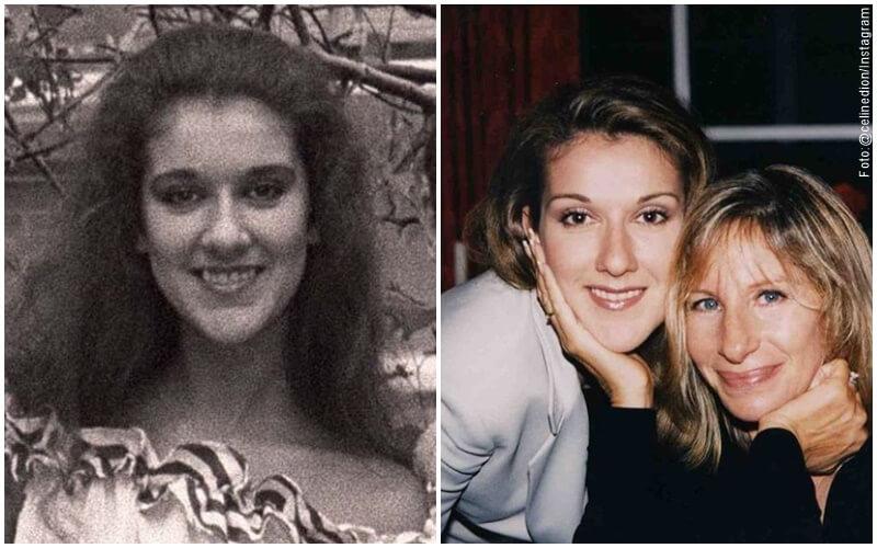 Antes y después del diseño de sonrisa de Celine Dion
