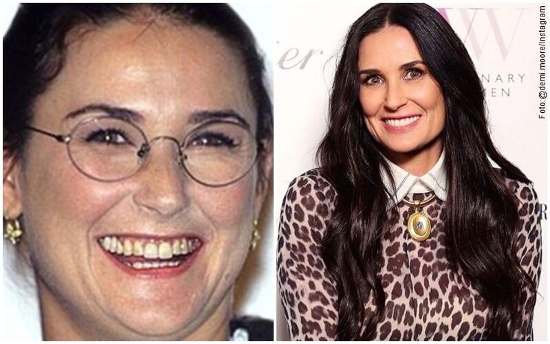 Antes y después del diseño de sonrisa de Demi Moore