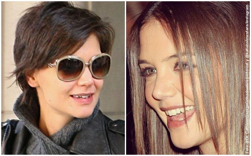 Antes y después del diseño de sonrisa de Katie Holmes