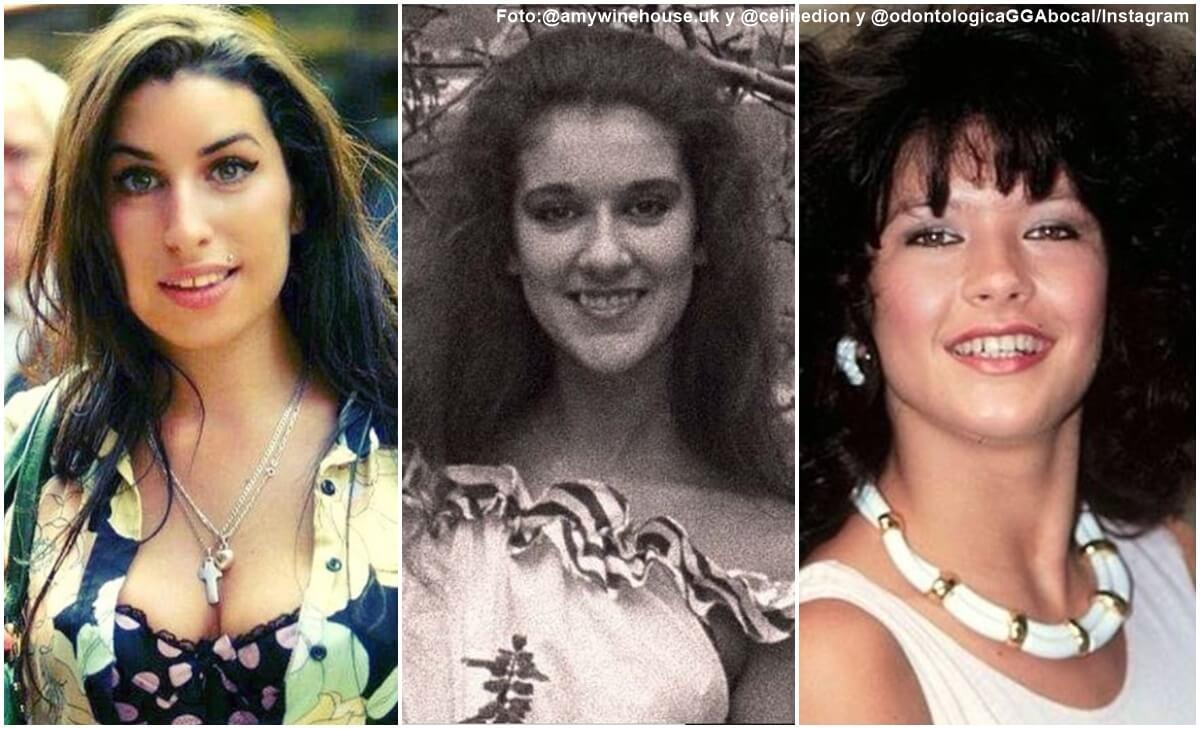 Impresionantes diseños de sonrisa de famosos