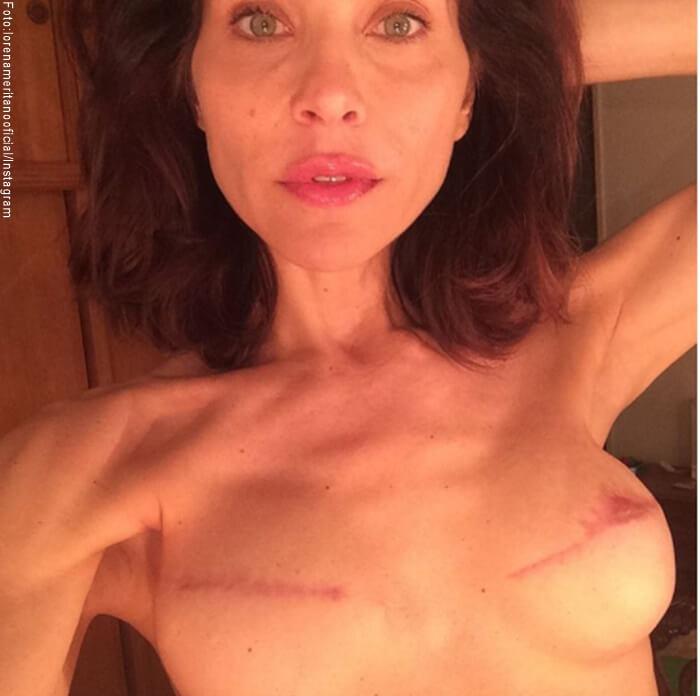 Foto de Lorena Meritano mostrando como quedaron sus senos después de sufrir cancer de seno