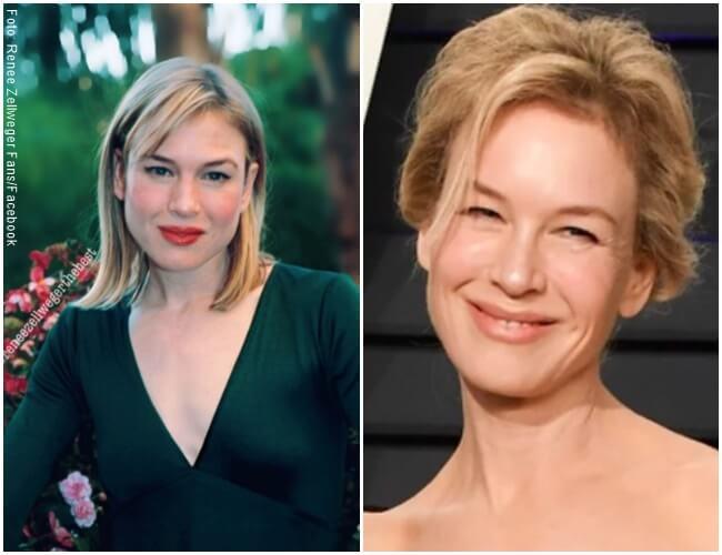 Fotos del antes y después de Renee Zellweger