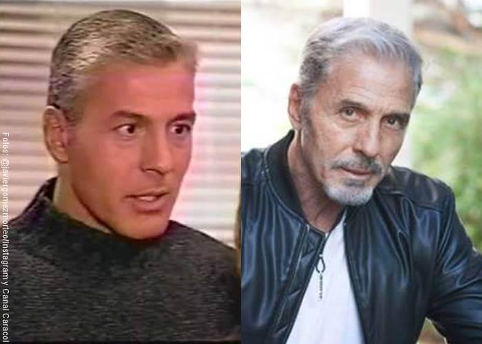 Foto antes y después de actor Javier Gómez