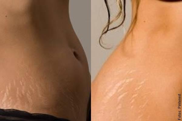 Mosaico de 2 fotos de mujeres con estrías en la cadera
