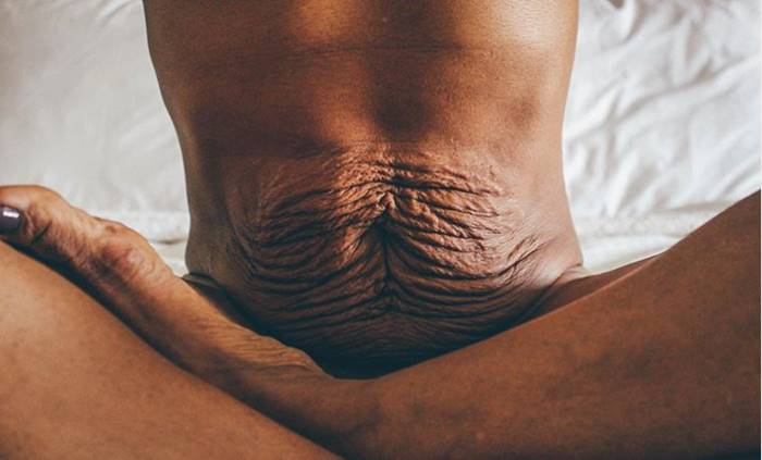 Foto de mujer con abdomen arrugado después del embarazo enorgullece a estas mamás
