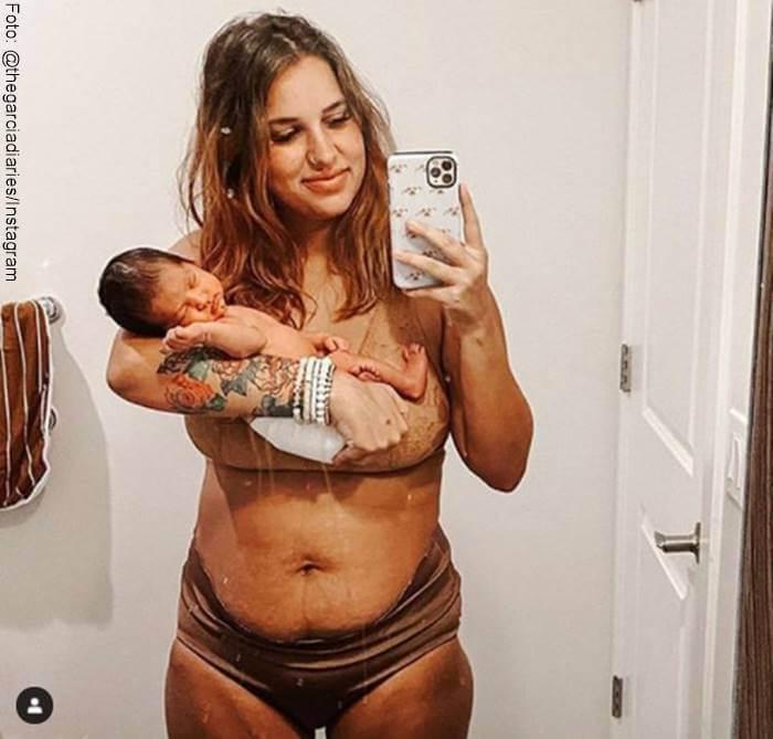 Foto de abdomen con piel suelta después del parto