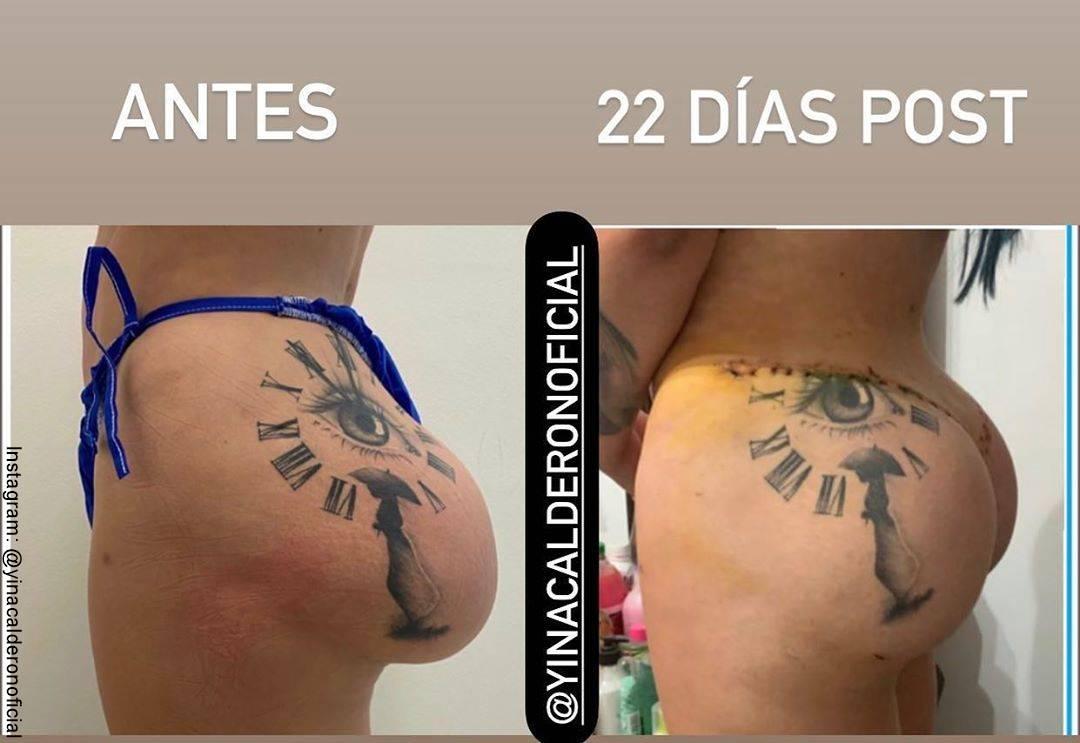 Foto comparativa del antes y después de la cola de Yina Calderón