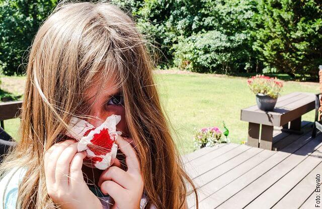 foto de sangrar por la nariz