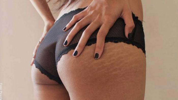 Foto de una mujer con estrías en la cola