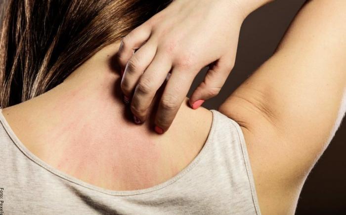 Foto de una mujer rascándose la espalda