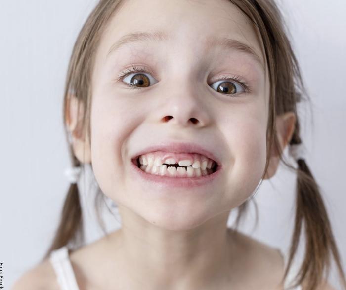 Foto de una niña mostrando los dientes