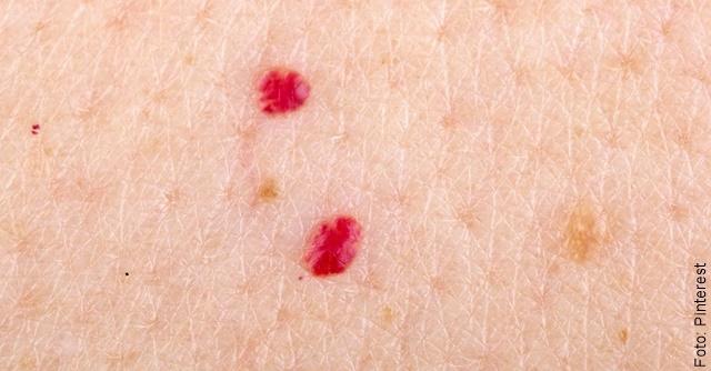foto que ilustra puntos rojos en las piel