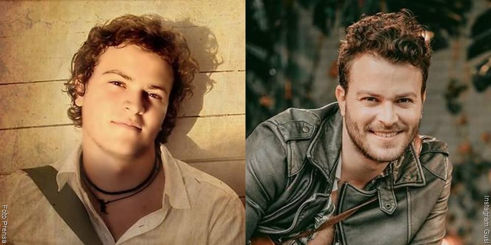 Foto de Gusi, antes y después