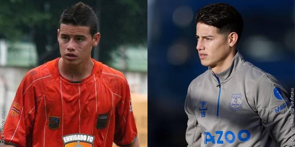 Foto de James Rodríguez, antes y después