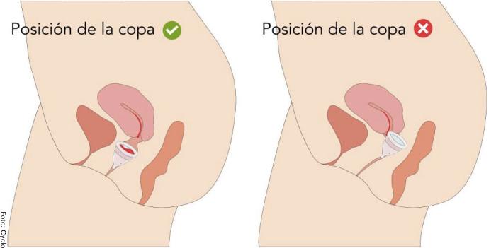 Foto de una imagen que muestra cómo poner correctamente la copa menstrual