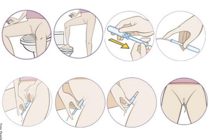 Foto de una ilustración de cómo usar un tampón