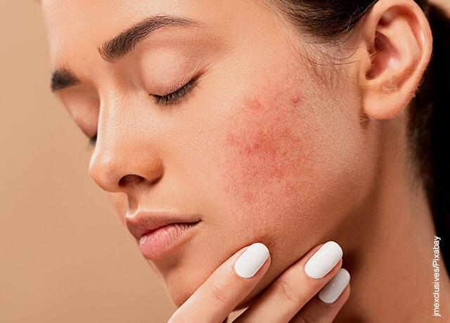 Foto del rostro de una mujer afectado por el cané que ilustra para qué sirve el jabón de azufre