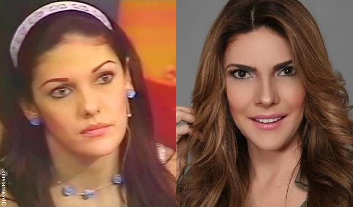 Mosaico de fotos de Ana Karina Soto antes y después