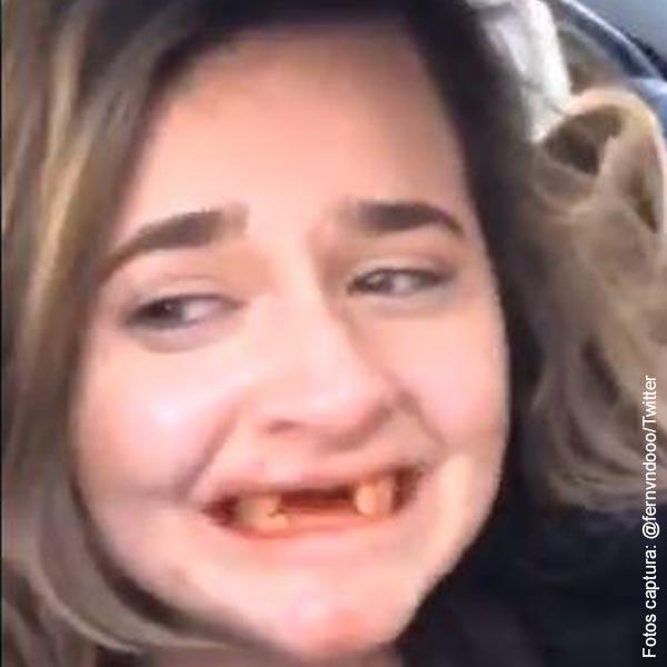 """Joven perdió dientes delanteros en juego hecho para """"borrachos"""""""