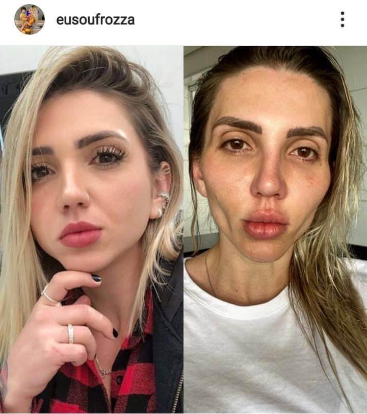 Foto de Jessica Frozza antes y después de la bichectomía