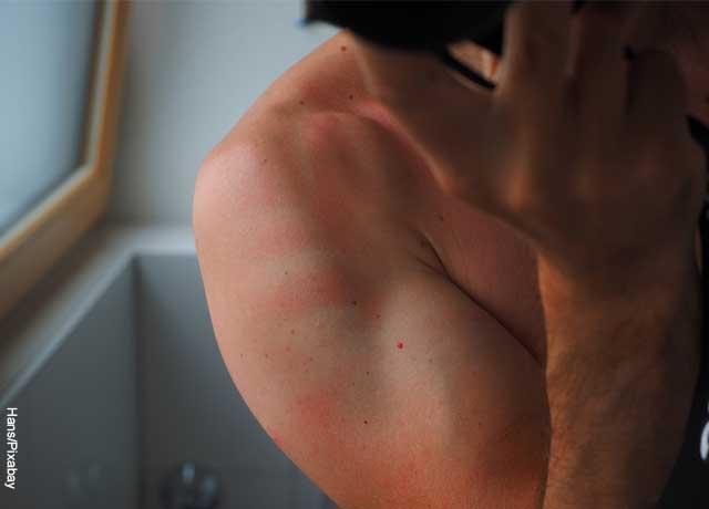 Foto de un hombre con un brazo quemado por los rayos UV