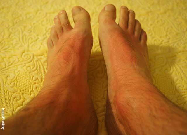 Foto de los pies de una persona con los pies irritados