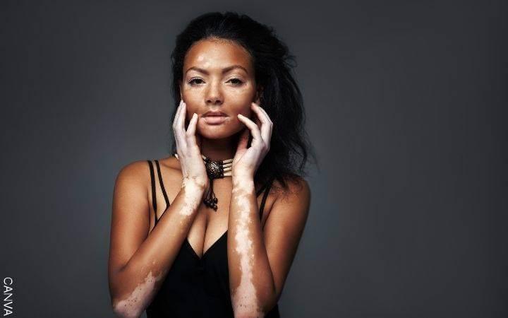Foto de una mujer con vitiligo
