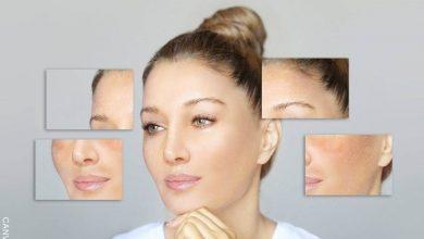 Manchas en la piel: Todo lo que debes saber y cómo prevenirlas