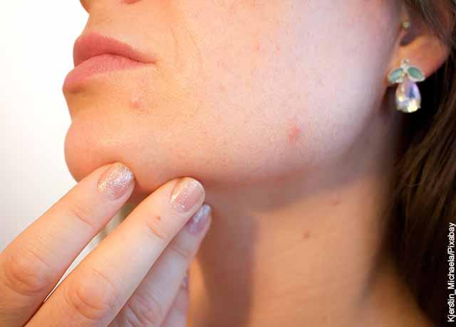 Foto de una mujer con acné en su rostro que revela para qué sirve el hielo en la cara