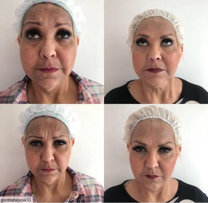 Fotos antes y después del Botox de La Gorda Fabiola