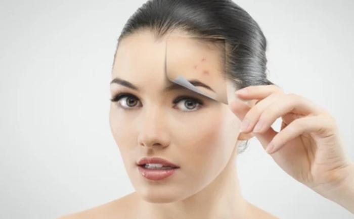 Foto para combatir el acné