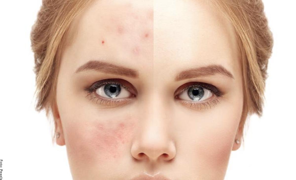 ¿Qué sirve para el acné? Remedios efectivos y naturales