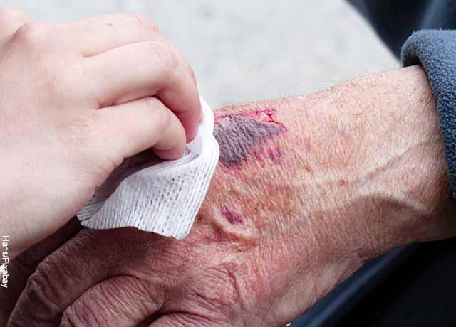 Foto de una persona haciendo curación a otra en una mano que muestra lo que es soñar con accidente