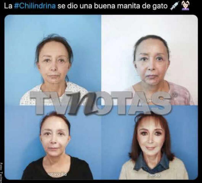 Foto de la Chilindrina tras cirugías en la cara