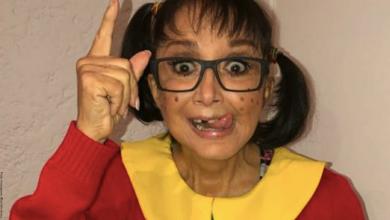 """""""La Chilindrina"""" se habría sometido a cirugía que la dejó irreconocible"""