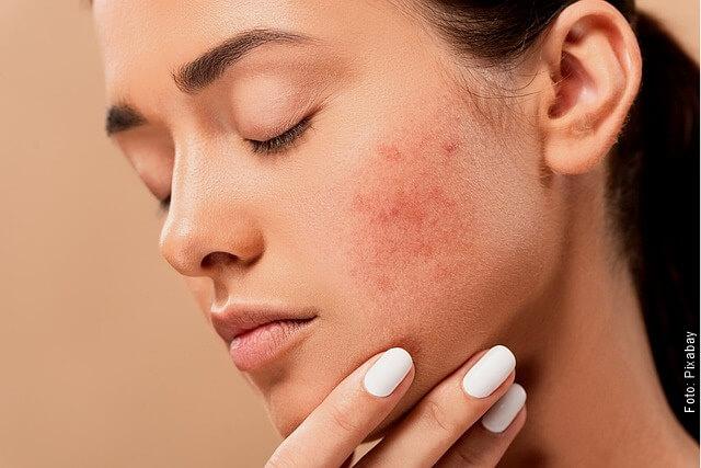 foto de mujer con acné