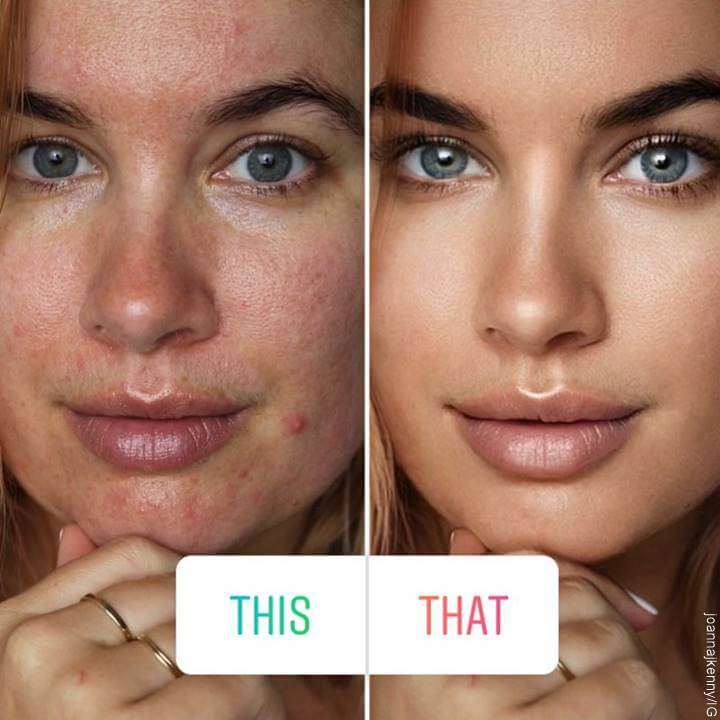 Foto de mujer con acné vs. maquillada