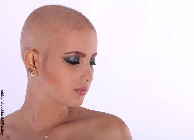 Foto de una mujer sin cabello
