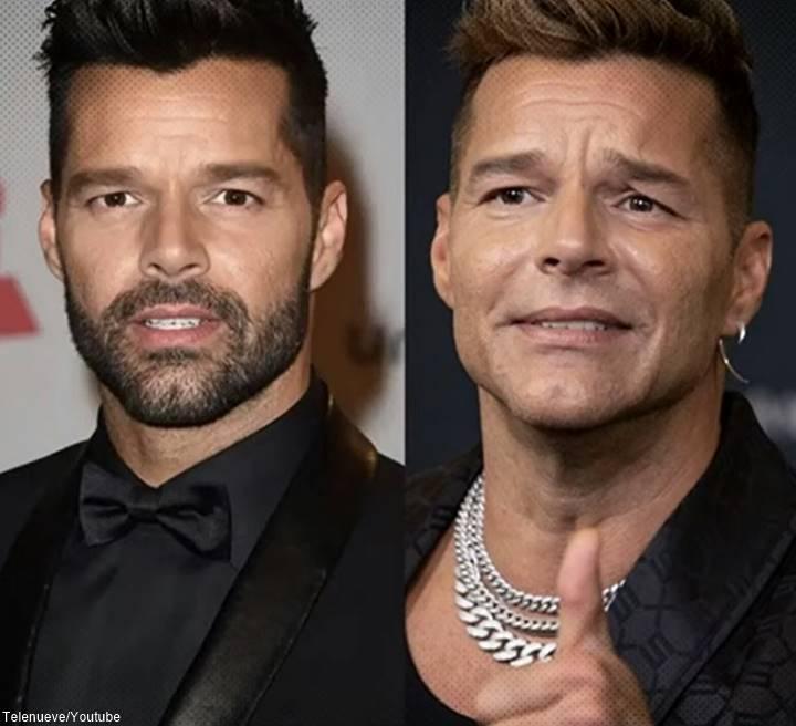 Foto de Ricky Martin antes y después de operarse el rostro