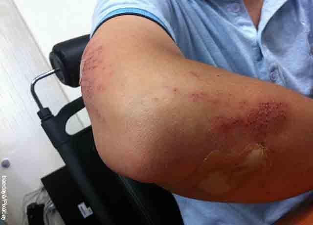 Foto de un hombre con el brazo lleno raspones
